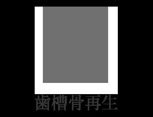 歯槽骨再生